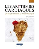 Les arythmies cardiaques