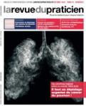 Epidémiologie des cancers du poumon en France et dans le monde